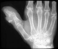 Osteoporotic Bones