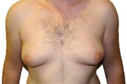 Man boob condition
