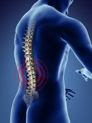 Low Back Pain injuries from poor posture