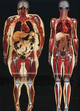 Unhealthy Fat Obesity versus Healthy
