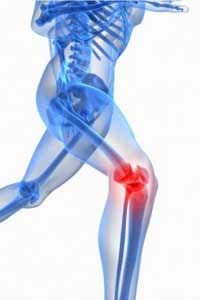 Patellofemoral Knee Pain injuries