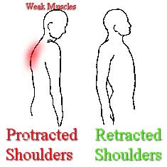 protracted shoulders posture problems