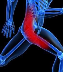 Sciatica & Piriformis Syndrome
