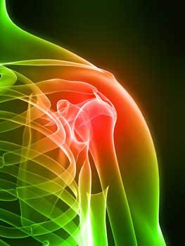 Shoulder Impingement injuries from poor posture