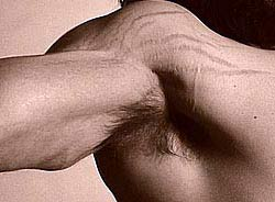 stretch marks from building muscle too fast