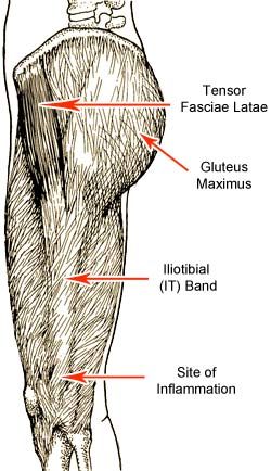 Iliotibial IT Band Syndrome Prevention and Treatment for Runners and Cyclists: A Guide to Knee Pain