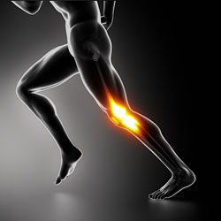 Iliotibial / IT Band Friction Syndrome