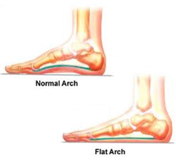Overpronation Foot Problems: How to Fix Flat Feet
