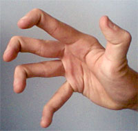 hypermobility in hand