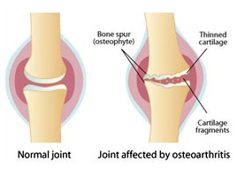 joint effected by osteoarthritis
