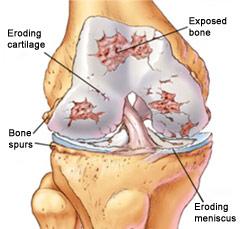 osteoarthritis joint diagram