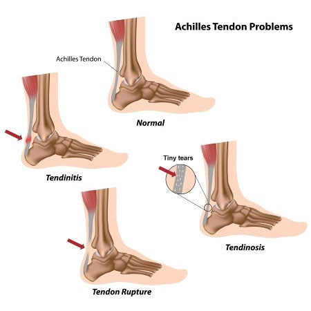 common achilles tendon problems