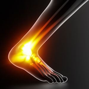 Identifying Achilles Pain and What to Do About It