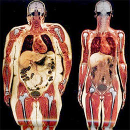 body fat xray fat and skinny