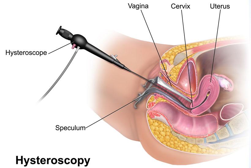 Hysteroscopy Surgical Treatment