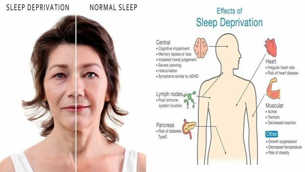 Effects of Sleep Deprivation on the Health